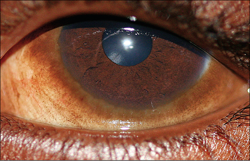 Corneal Dystrophy and the Cavalier King Charles Spaniel