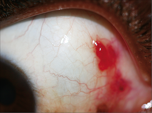 common conjunctival lesions