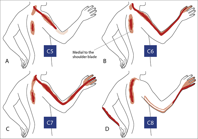 An approach to the painful upper limb | Mogere | Continuing