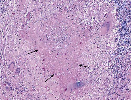 Sarcoidosis Allwood Continuing Medical Education